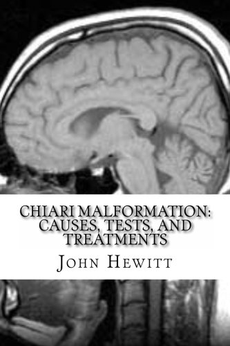 Chiari Malformation: Causes, Tests, and Treatments