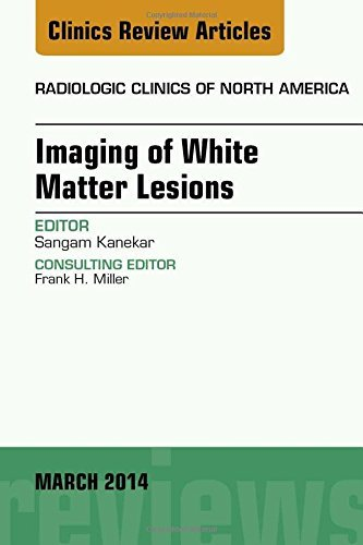 Imaging of White Matter, An Issue of Radiologic Clinics of North America, 1e (The Clinics: Radiology) by Sangam Kanekar MD (2014-03-28)