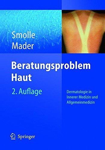 Beratungsproblem Haut: Dermatologie in Innerer Medizin und Allgemeinmedizin (German Edition) by Josef Smolle (2004-10-19)