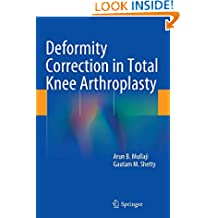 Deformity Correction in Total Knee Arthroplasty