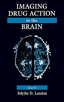 Imaging Drug Action In The Brain por Edythe D. London epub