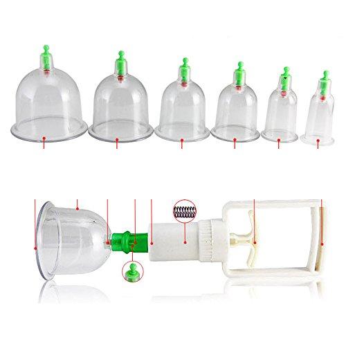 Preisvergleich Produktbild Contever® Schröpfen Set Schröpfgläser Gerät Schröpfset Cupping Apparatus Vakuummassage Cellulitebehandlung (6St)