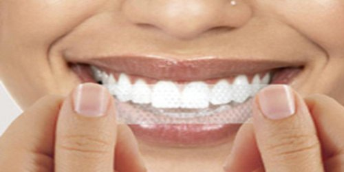 56-teeth-whitening-strips-professional-safe-home-free-shade-guide