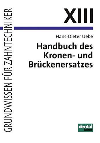 Grundwissen für Zahntechniker, Tl.13, Handbuch des Kronenersatzes und Brückenersatzes