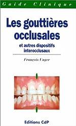 Les gouttières occlusales et autres dispositifs interocclusaux