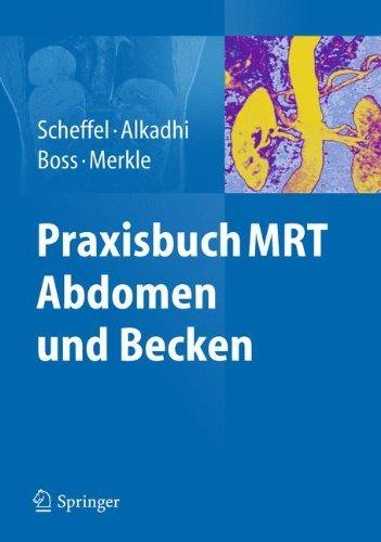 Download Praxisbuch MRT Abdomen und Becken