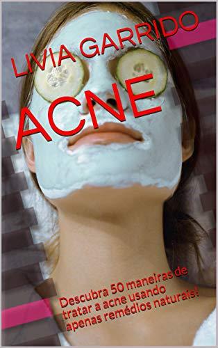 ACNE: Descubra 50 maneiras de tratar a acne usando apenas remédios naturais! (Portuguese Edition)