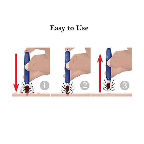 Calops Tick Remover Tick Removal Ticks Tweezers Grooming Tools For Dog,Cat,Horse,Rabbit Eliminate Pests Flea Tweezers 5