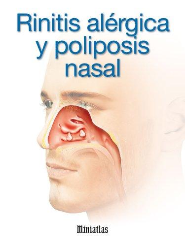 Rinitis Alérgica y Poliposis Nasal (Spanish