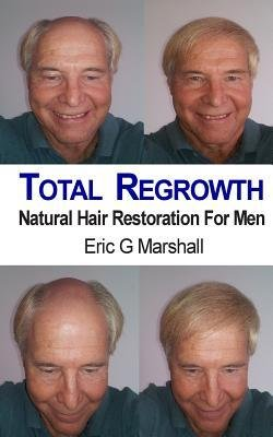 [ Total Regrowth: Natural Hair Restoration for Men Marshall, MR Eric G. ( Author ) ] { Paperback } 2014
