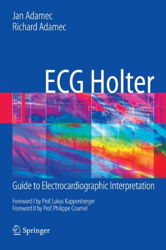 ECG Holter: Guide to Electrocardiographic Interpretation