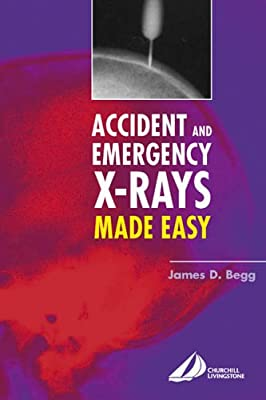 Accident and Emergency X-Rays Made Easy, 1e from Churchill Livingstone
