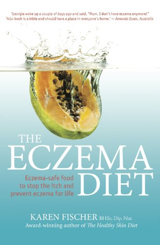 the-eczema-diet-eczema-safe-food-to-stop-the-itch-and-prevent-eczema-for-life