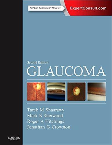 Glaucoma: 2-Volume Set, 2e by Tarek M. Shaarawy MD MSc (2014-09-17)