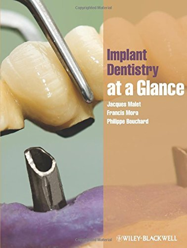 Implant Dentistry at a Glance (At a Glance (Dentistry)) by Malet, Jacques, Mora, Francis, Bouchard, Philippe (January 20, 2012) Paperback