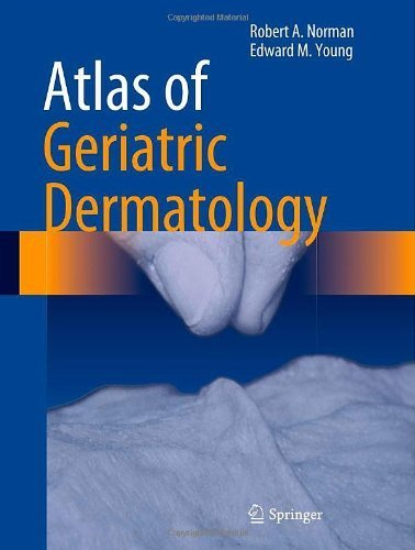 Atlas of Geriatric Dermatology 2013 Edition by Norman, Robert A., Young Jr, Edward M. (2013) Hardcover