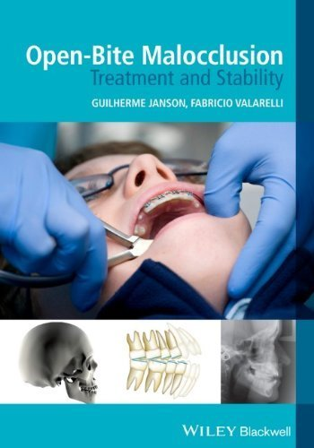 Open-Bite Malocclusion: Treatment and Stability (2014-01-28)