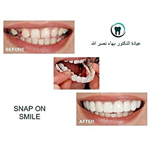 Allbesta Snap On Comfort Fit Flex Cosmetic Teeth One Size Fits Most Comfortable Denture Dentistry Care