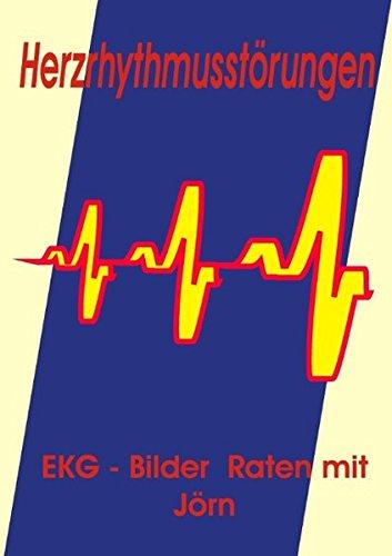 Herzrhythmusstörungen: EKG - Bilder Raten mit Jörn