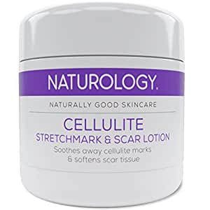 Naturology Creme gegen Cellulite - Dehnungsstreifen - Narben - Die beste fortschrittliche 3 in 1 Behandlung - Einzigartige Formel gegen Orangenhaut Schwangerschaftsstreifen & Aknenarben