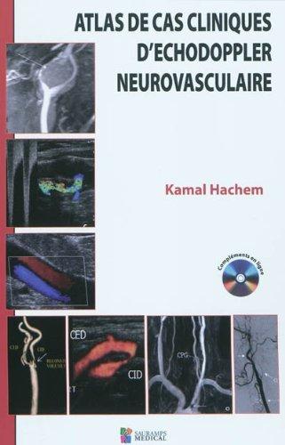 Atlas des cas cliniques d'échodoppler neurovasculaire par Kamal Hachem