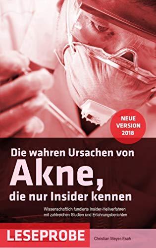 Die wahren Ursachen von Akne, die nur Insider kennen (Leseprobe)
