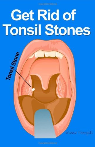 get rid of tonsil stones - causes, symptoms, treatment, removal and other remedies by diana thorgill m.d. (2013-08-13)