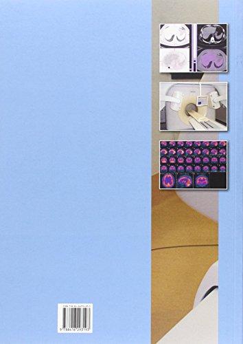 Técnicas de imagen por medicina nuclear