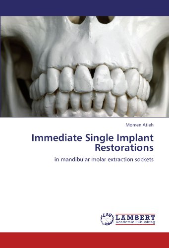 Immediate Single Implant Restorations: in mandibular molar extraction sockets Single Socket