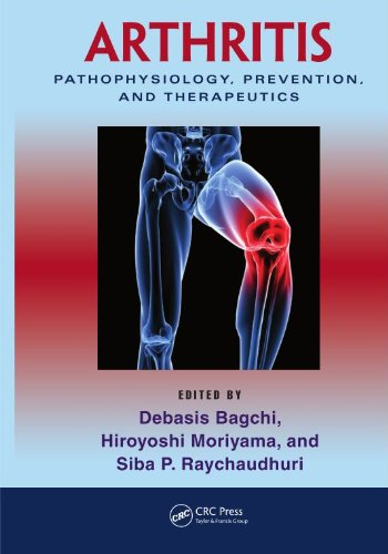 arthritis-pathophysiology-prevention-and-therapeutics