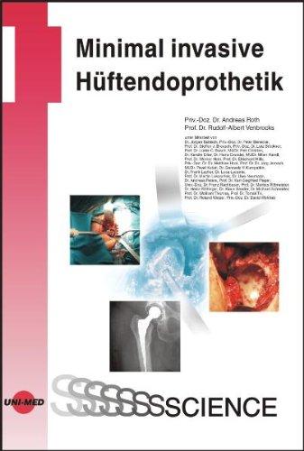 Minimal invasive Hüftendoprothetik (Hüftendoprothetik)