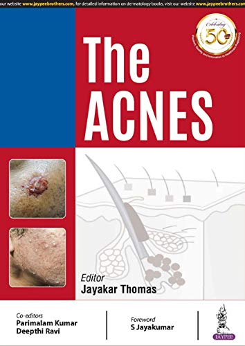 The ACNES