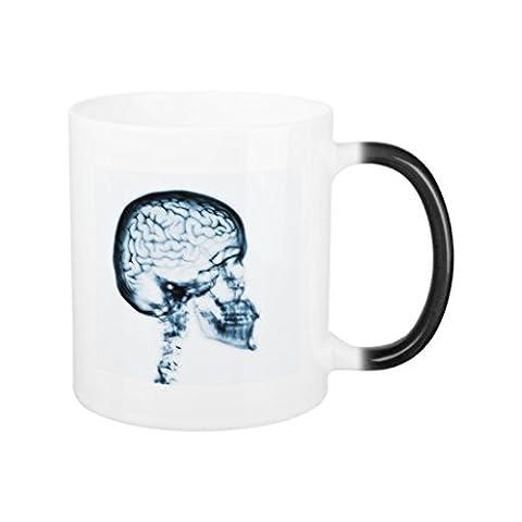 Funny Kaffee Tassen, für Frauen X-Ray Skull Brain Blau Magic Tasse Office Geschenke für Weihnachten 313ml Keramik Tasse beiden Seiten