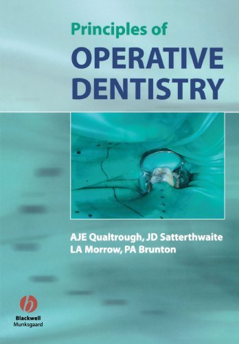 Principles of Operative Dentistry: The Fundamentals