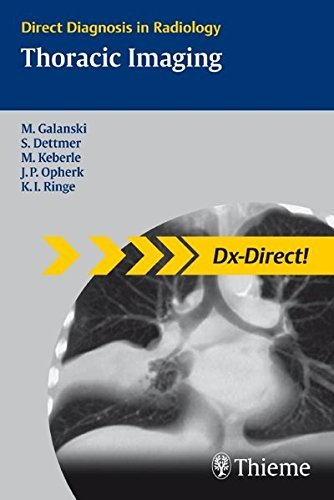 Dx Direct Set: Thoracic Imaging (Direct Diagnosis in Radiology: DX-Direct!) by Michael Galanski (2010-04-27)