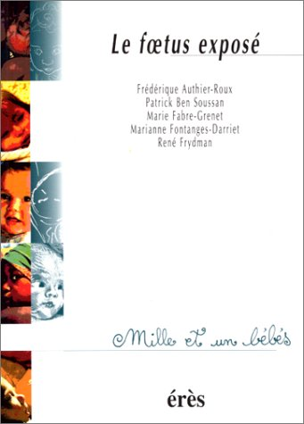 Le foetus exposé par Frédérique Authier-Roux