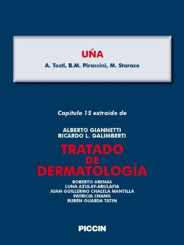 Capítulo 15 extraído de Tratado de Dermatología - UÑA por A.Giannetti