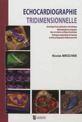 Echocardiographie tridimensionnelle