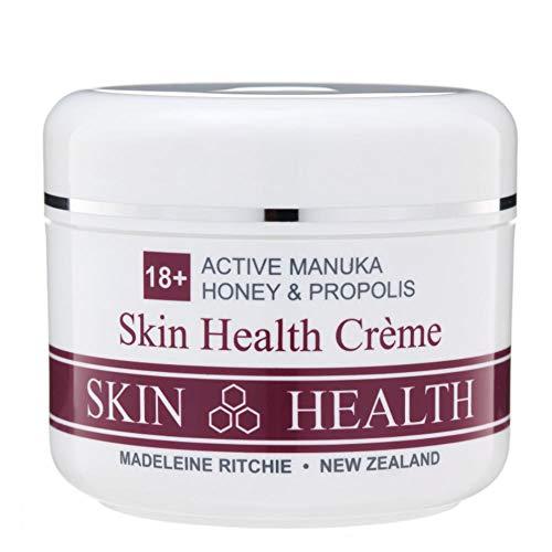 Madeleine Ritchie New Zealand 18+ Active Manuka Honey & Propolis Hautgesundheitscreme zur Heilung von Hautproblemen 200ml. Hervorragend bei Ekzemen, Psoriasis, Dermatitis, Akne und trockener Haut. -