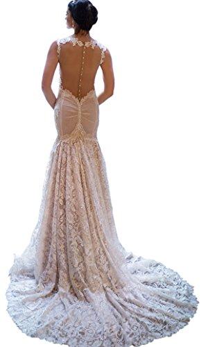 Ikerenwedding Damen Spitze Applikationen V-Ausschnitt Reiner Zurück Meerjungfrau Hochzeitskleid Champagner