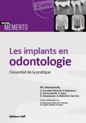 Les implants en odontologie: L'essentiel de la pratique.
