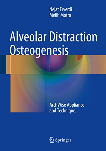 Alveolar Distraction Osteogenesis: ArchWise Appliance and Technique