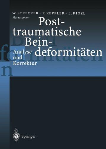 posttraumatische-beindeformitaten-analyse-und-korrektur
