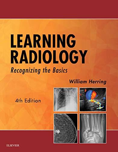 Learning Radiology E-Book: Recognizing the Basics (English Edition)