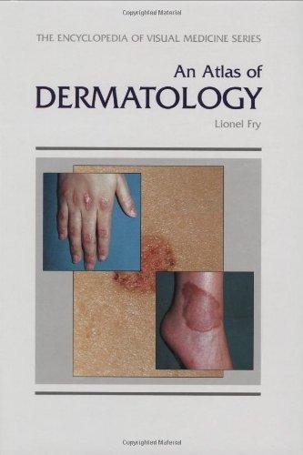 An Atlas of Dermatology (Encyclopedia of Visual Medicine Series) by Fry L. (15-Mar-1997) Hardcover
