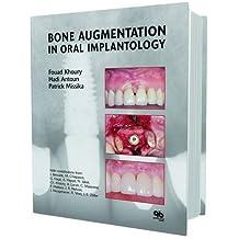 Bone Augmentation in Oral Implantology