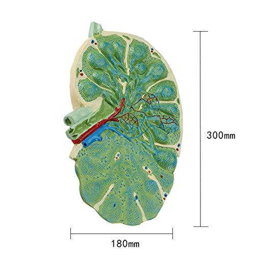 XIEJI Lymphknotenvergrößerungsmodell Abnehmbar Biologieunterricht Sekundarschulunterricht