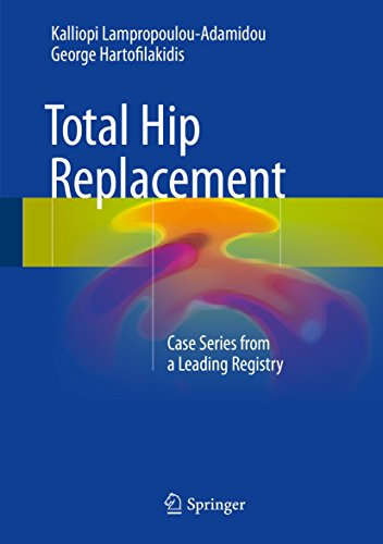 New pdf release total hip replacement case series from a leading new pdf release total hip replacement case series from a leading registry fandeluxe Choice Image
