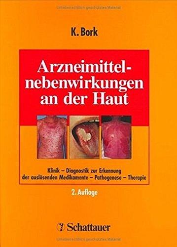 Arzneimittelnebenwirkungen an der Haut: Klinik - Diagnostik zur Erkennung der auslösenden Medikamente - Pathogenese - Therapie