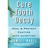 Cure Tooth Decay: Heal and Prevent Cavities With Nutrition by Ramiel Nagel (2009-08-02)